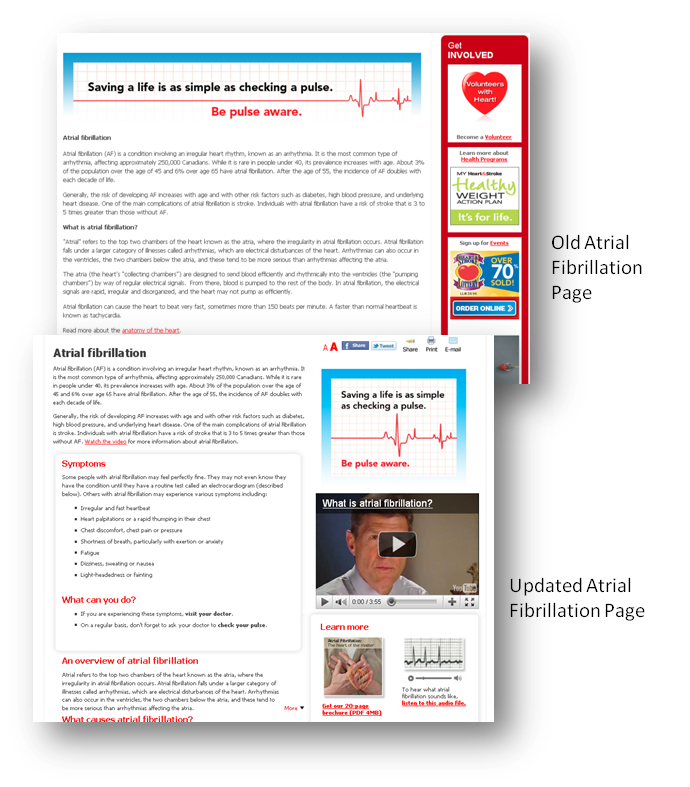 thinkdoDELIVERS – Heart & Stroke Atrial Fibrillation